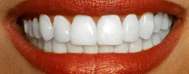 80% zniżki na wybielanie zębów w Orto Profil oraz w White & Beauty